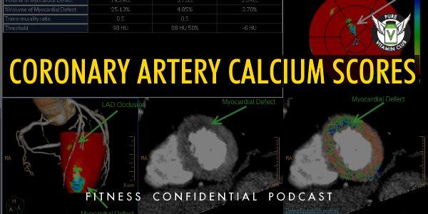 Coronary Artery Calcium Scores – Episode 850