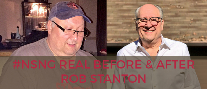 Real Before And After Rob Stanton